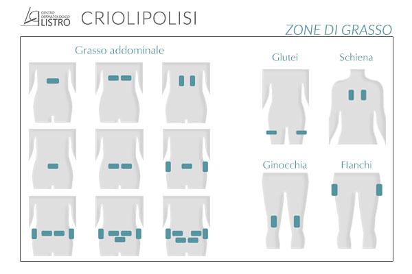 criolipolisi-controindicazioni eliminare grasso
